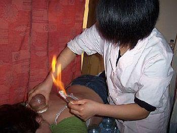 Feuer-Schröpfen